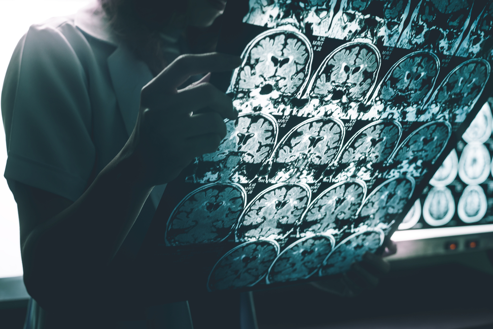 Alzheimer's disease market set for double-digit growth with forecast sales of $14.8Bn by 2026