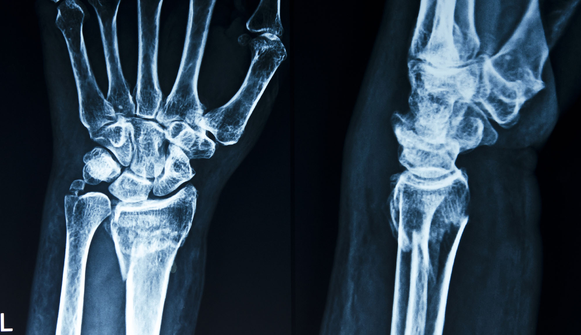 European wrist replacement market to see steady growth as more people take up sport